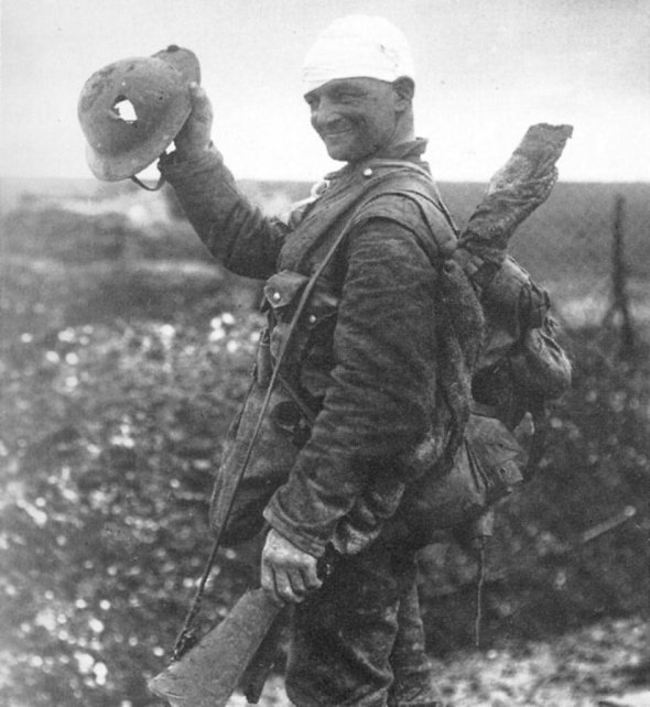 A British soldier with a bandaged head smiles as he shows the cameraman his helmet and the large hole blown straight through it. (1918)
